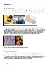 Zweetvoeten (patienteninformatie) - Huidziekten.nl