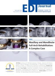 Maxillary and Mandibular Full-Arch Rehabilitation