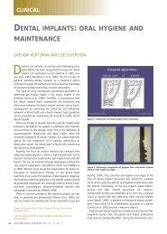 dental implants: oral hygiene and maintenance - International ...