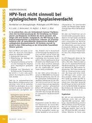 HPV-Test nicht sinnvoll bei zytologischem Dysplasieverdacht