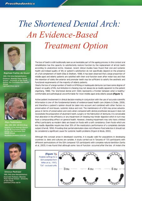 The Shortened Dental Arch: An Evidence-Based Treatment Option