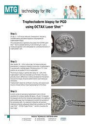 Trophectoderm biopsy for PGD using OCTAX Laser Shot