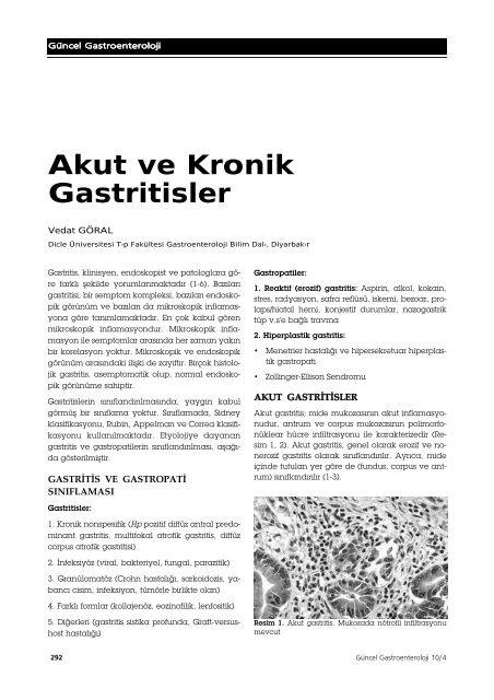 Akut ve Kronik Gastritisler - Güncel Gastroenteroloji