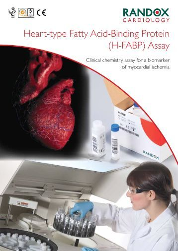 Heart-type Fatty Acid-Binding Protein (H-FABP) Assay