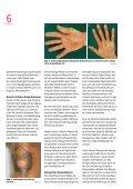 Schutz vor Hautkrankheiten durch Zement - Seite 6