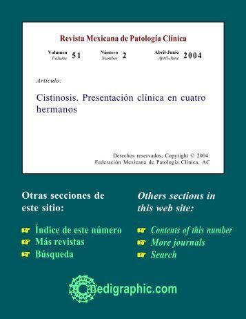 Cistinosis. Presentación clínica en cuatro hermanos - edigraphic.com