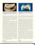 Zirkoniumoksid - Den norske tannlegeforenings Tidende - Page 2