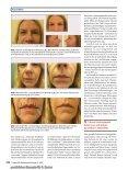 ästhetische chirurgie - Dr. Zenker Dermatologie - Seite 3