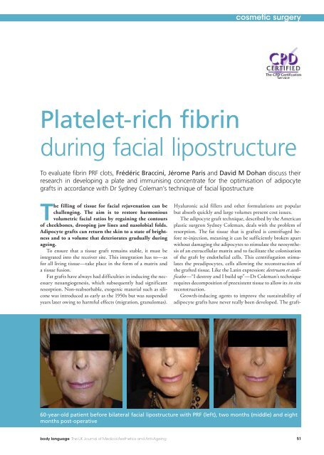 The filling of tissue for facial rejuvenation can be - Braccini