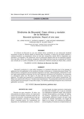 Síndrome de Bouveret: Caso clínico y revisión de la literatura