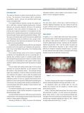 INTENTIONAL REPLANTATION WITH TOOTH ... - Osteocom.net - Page 2