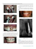 INTENTIONAL REPLANTATION WITH TOOTH ... - Osteocom.net - Page 3