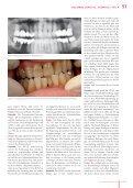 Dental Barometer 04_2007 Kolumne Deppe vs. Osswald | Teil 4 - Seite 6