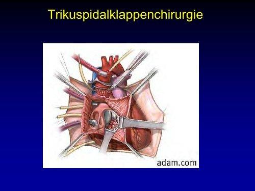 Trikuspidalklappenchirurgie - Klinik für Herz- und Thoraxchirurgie