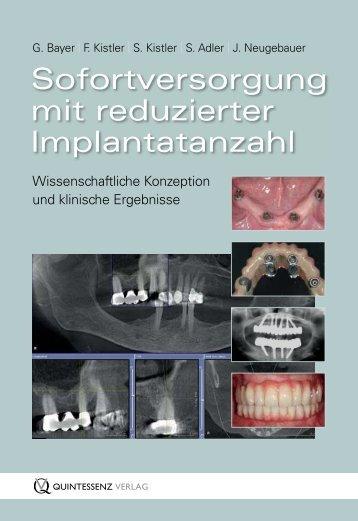 Quintessenz Leseprobe - Quintessenz Verlag, Berlin