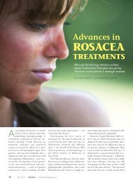 Advances In ROSACEA - Dalton and Associates Medical Writing