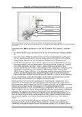 Diagnostik und Therapie des Kubitaltunnelsyndroms (KUTS) - Seite 7