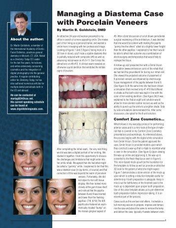 Diastema Case with Porcelain Veneers (.pdf) - Dr. Martin B. Goldstein
