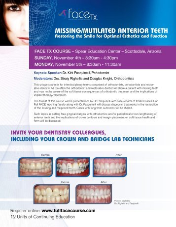 Missing/Mutilated anterior teeth - Roth Williams International Society ...