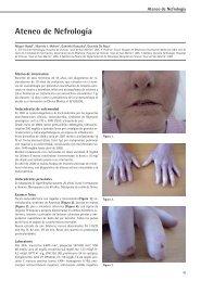 Nefrologia revista 20090521.indd - Revista Argentina de Nefrología