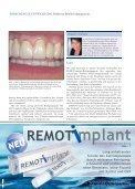 Prof. Implantatreinigung - Seite 4