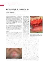 Odontogene Infektionen