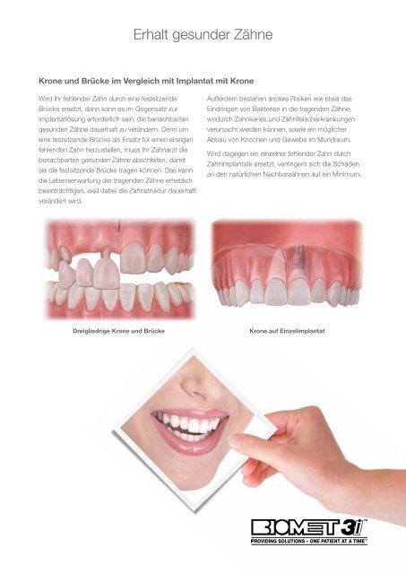 Mehr Lebensqualität durch Zahnimplantate… - BIOMET 3i