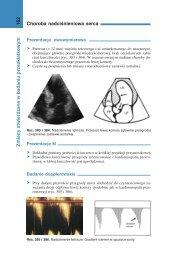 Choroba nadciśnieniowa serca 162 Zmian y stwierdzane w badaniu ...