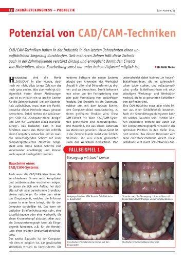 Potenzial von CAD/CAM-Techniken - DDr. Günter Wiesner