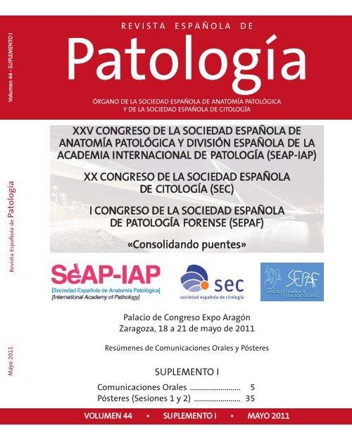 Patogenia del ameloblastoma unicístico de la hipertensión