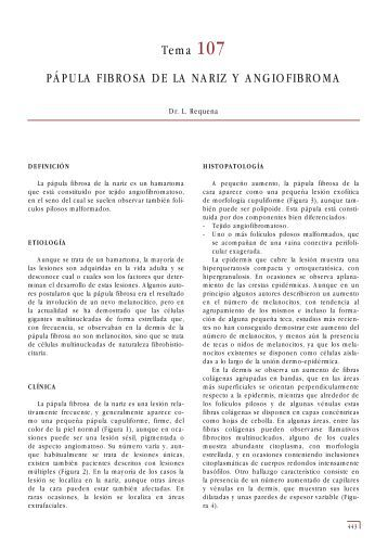 Tema 107 PÁPULA FIBROSA DE LA NARIZ Y ... - e-dermatosis.com