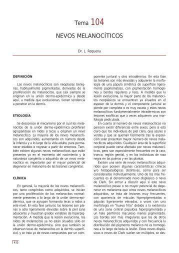 Tema 104 NEVOS MELANOCÍTICOS - e-dermatosis.com