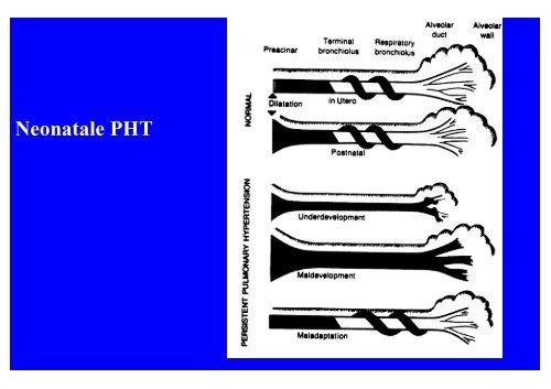 Pathophysiologie und Hämodynamik bei pulmonaler Hypertonie + ...