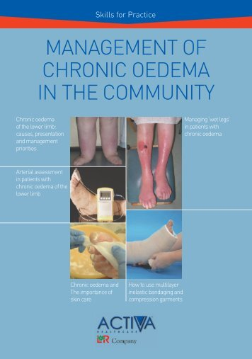 Management of Chronic Oedema in the Community - Wounds ...
