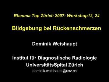 Bildgebung bei Rückenschmerzen - Rheuma Schweiz