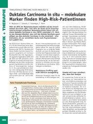 Duktales Carcinoma in situ – molekulare Marker finden ... - Frauenarzt