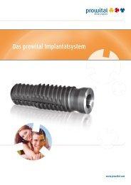 Das prowital Implantatsystem - Wieladent