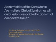 Abnormalities of the Dura Mater: are multiple Clinical Syndromes ...