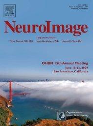 OHBM 15th Annual Meeting - Organization for Human Brain Mapping