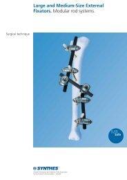 Large and Medium-Size External Fixators. Modular ... - Osteosyntese