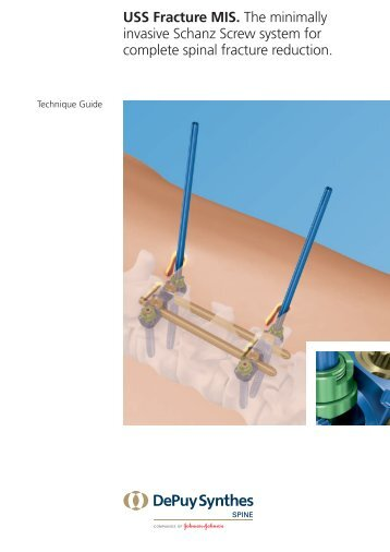 USS Fracture MIS. The minimally invasive Schanz Screw ... - Synthes