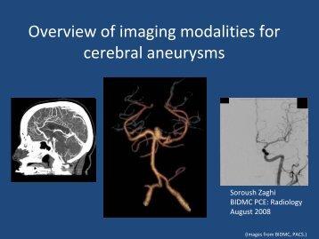 Radiologic imaging of cerebral aneurysms - Lieberman's ...
