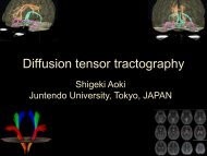 Diffusion tensor tractography