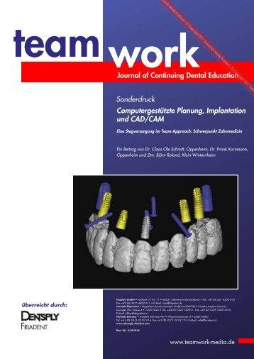 Computergestützte Planung, Implantation und CAD/CAM