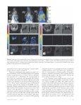 Noninvasive Bioluminescence Imaging in Small Animals - Page 7