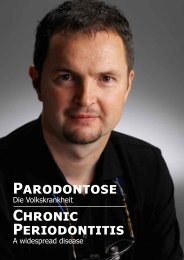Parodontose Chronic Periodontitis - Zahnarzt Prof. Dr. Michael Rosin