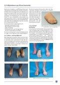 Otto Bock Prothesen-Kompendium - Orthotop - Seite 4