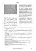 Ekrin Anjiomatöz Hamartom - Konuralp Tip Dergi - Page 3