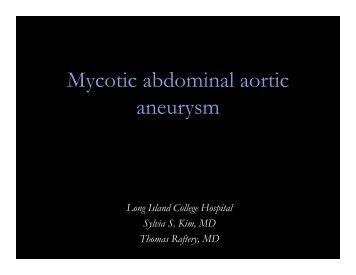 Mycotic abdominal aortic aneurysm
