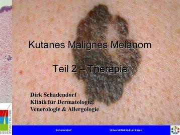 Melanom - Universitätsklinikum Essen